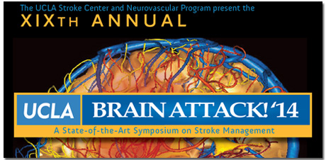 Link to Brain Attack Webcasts